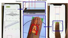 Người dùng iPhone có thể tự mình đo huyết áp bằng điện thoại