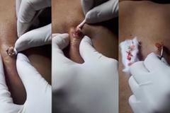 Video bác sĩ vật lộn nặn mụn nằm im 10 năm ở Hà Nội lên báo Tây