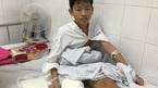 Cậu học trò ung thư và ước mơ lắp chân giả đến trường