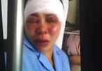 Nữ hộ lý bị chồng cắt gân chân, đánh tím mặt