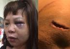Khởi tố gã chồng cắt gân chân, đánh vợ tím mặt