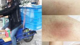 Nhân viên giao hàng xâm hại tình dục khách nữ khiến người dân phẫn nộ