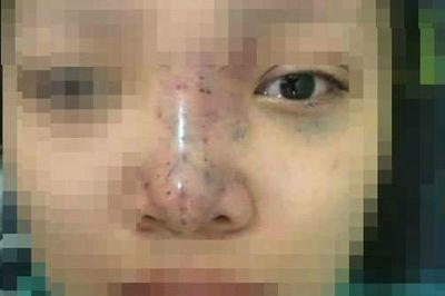 Nữ sinh mù mắt khi tiêm filler: Tiết lộ từ bác sĩ điều trị