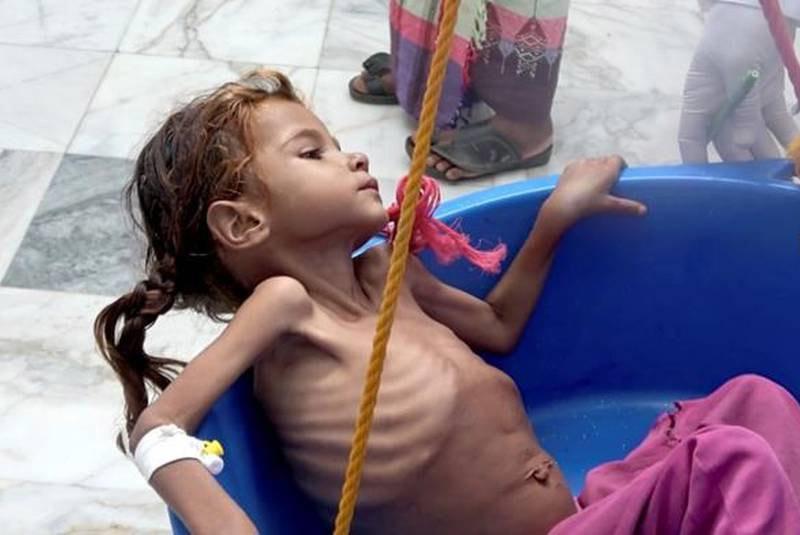 Yemen,trẻ em Yemen,suy dinh dưỡng