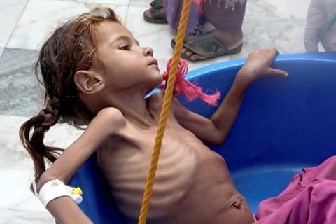 Đau lòng cảnh trẻ em Yemen da bọc xương nhai lá cây để sống