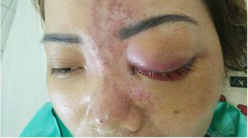 Tiêm filler bị mù mắt: Chỉ xử phạt hành chính spa không phép