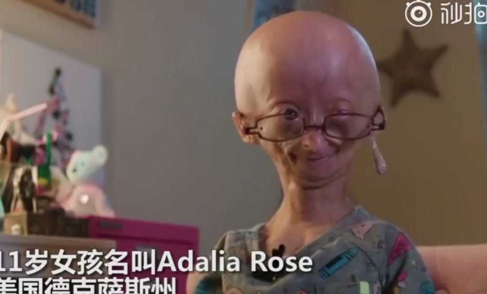 Bé gái 11 tuổi có vẻ ngoài giống bà cụ 80 tuổi