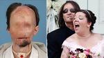 Bị vợ bỏ vì quá xấu, người chồng ghép mặt 8 năm trước giờ ra sao?