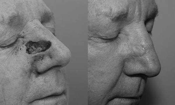 ung thư mũi,ung thư mũi họng