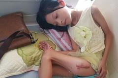 Vừa mổ tim, bé gái phát hiện mắc ung thư xương