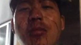 Tranh cãi thẻ giữ xe, cư dân bị bảo vệ đánh gãy sống mũi