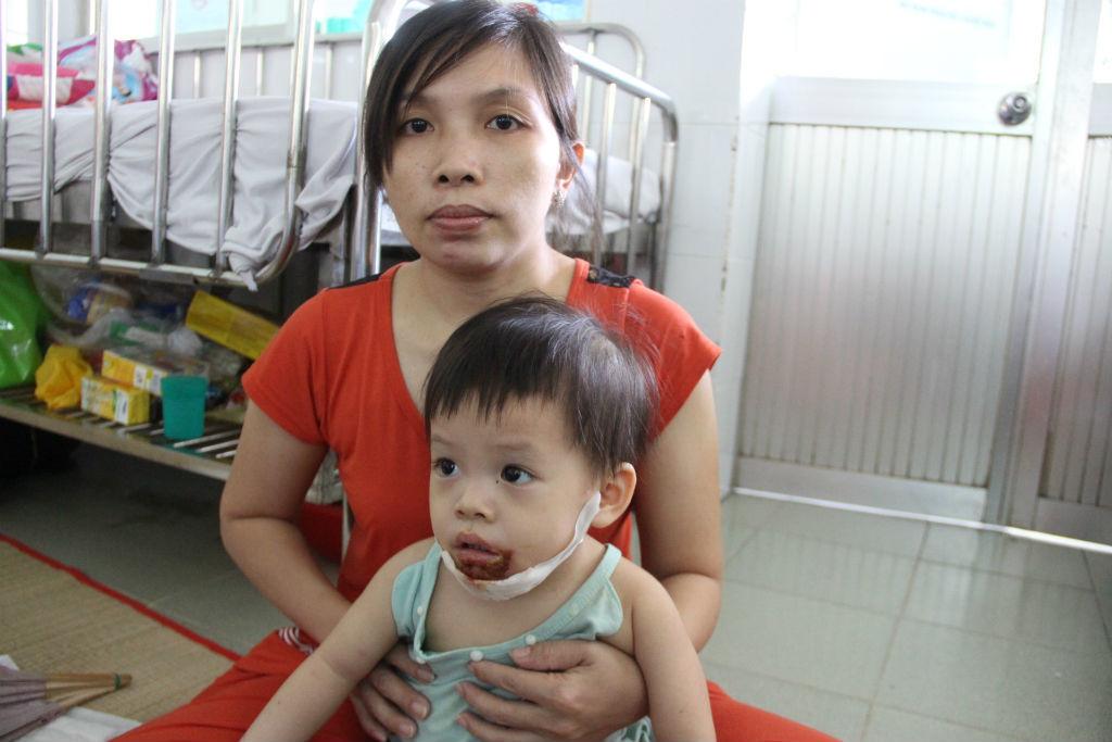 Mẹ nghi con 18 tháng bị nữ bảo mẫu đổ nước sôi bỏng miệng