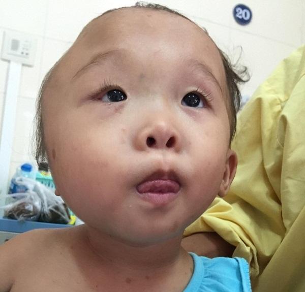 Bé gái 2 tuổi bị biến dạng khuôn mặt vì u màng nhện