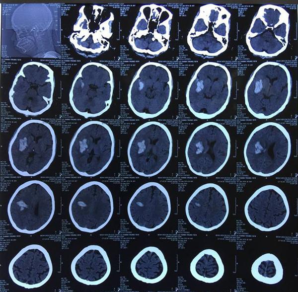 Cắt phăng mảnh sọ cứu sống bệnh nhân chảy máu não ồ ạt