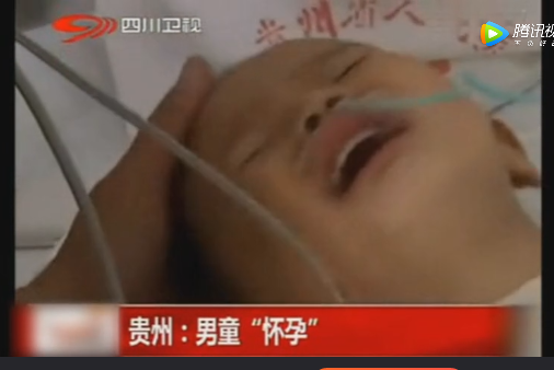 Bé trai 2 tuổi đột nhiên 'ốm nghén' và mang thai khó hiểu