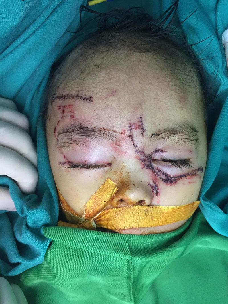 Bé gái 31 tháng bị chó nhà cắn nát mặt