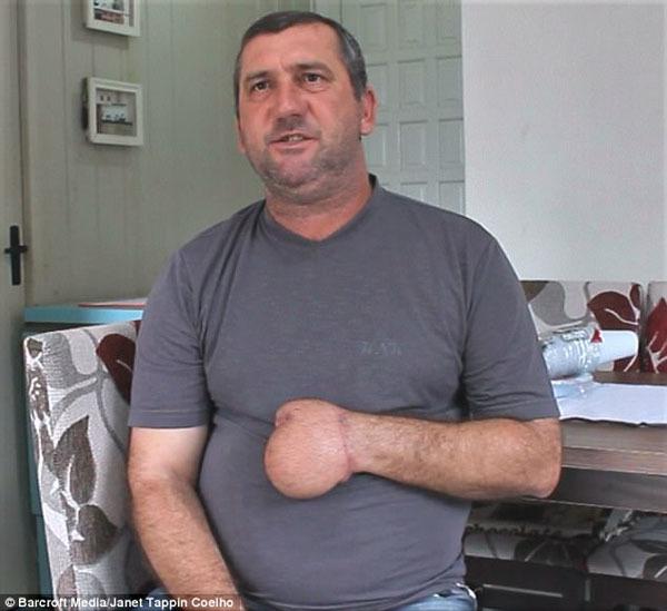 Bác sĩ khâu tay người đàn ông vào dạ dày và cái kết bất ngờ