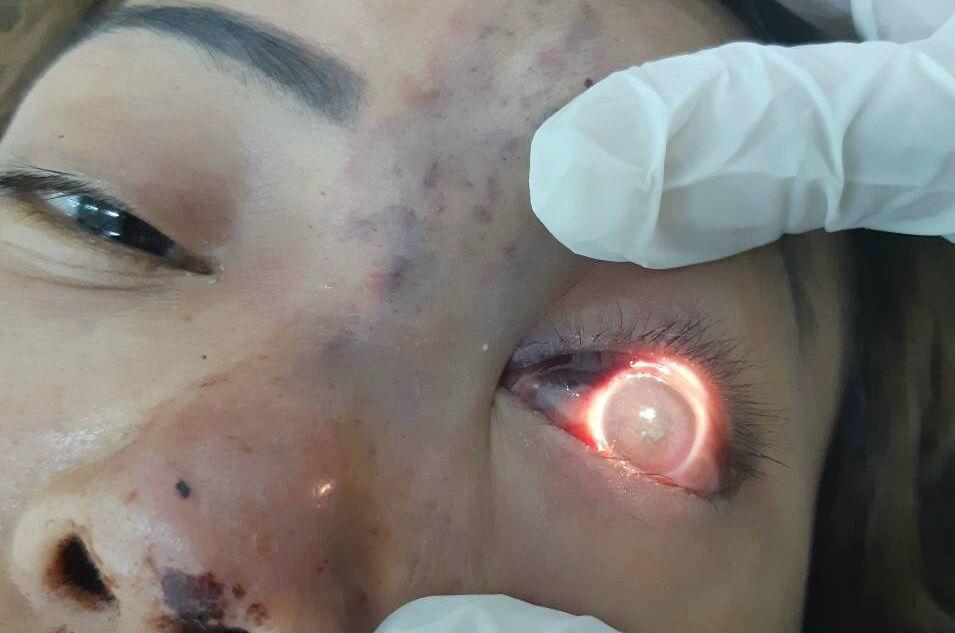 filler,mù mắt,biến chứng