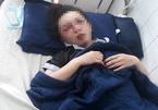 Nữ nhân viên tiệm spa bị 6 người đánh đập đến nhập viện