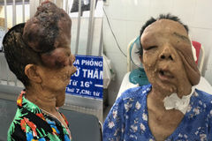 Người phụ nữ 10 năm không dám ra đường vì mang khuôn mặt kỳ dị