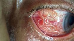 Bác sĩ rùng mình gắp giun dài 15cm ngoe nguẩy trong mắt bệnh nhân