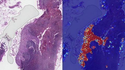 Trí tuệ nhân tạo giúp phát hiện ung thư di căn chính xác 99%