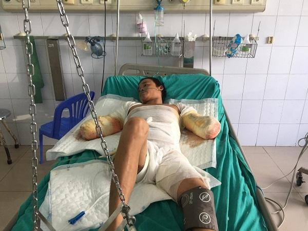 hoàn cảnh khó khăn,bỏng điện,từ thiện VietNamNet