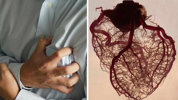 Chàng trai 29 tuổi có huyết quản như bã đậu, suýt đột quỵ vì thói quen xấu