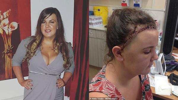 Cô gái 24 tuổi đột ngột bị mù do bỏ qua dấu hiệu này