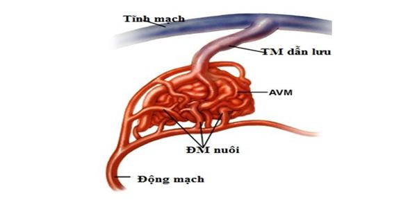 Dị tật,tĩnh mạch,dị tật tĩnh mạch