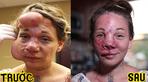 Người phụ nữ có gương mặt chực vỡ tung vì nguyên nhân lạ