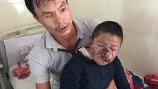 Mắc bệnh hiểm, bé trai 8 tuổi bị biến dạng mặt nghiêm trọng