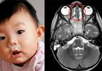 Bé 3 tuổi chảy mũi liên tục tưởng viêm xoang, ngờ đâu mắc ung thư hiếm