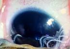 Bác sĩ kinh hãi gắp 11 con giun lúc nhúc trong mắt bé trai