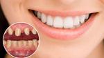 Cô gái trẻ rơi cả hàm răng sau khi bọc răng sứ