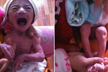 """Sinh con đầu lòng giống """"ông già"""", bác sĩ chẩn đoán bệnh khiến cả nhà bật khóc"""