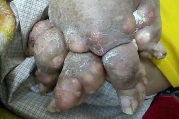 Nghiện rượu 25 năm, tay chân người đàn ông sùi to như súp lơ