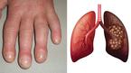 Những dấu hiệu ở móng tay cảnh báo bạn mắc bệnh nặng, có cả ung thư