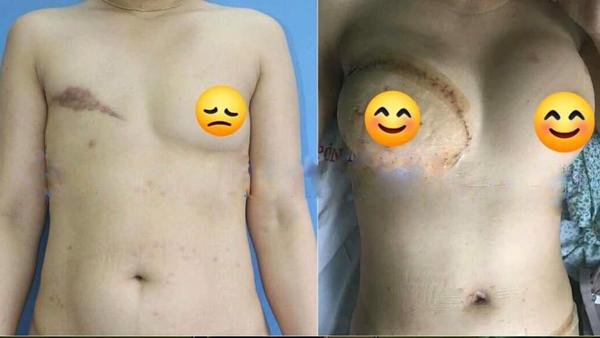 Người phụ nữ nhiều năm phải nhét giẻ vào ngực vì lý do đau đớn