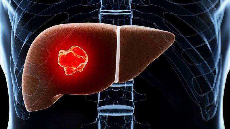 20 triệu người Việt nhiễm virus gây ung thư gan