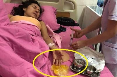 Ca sĩ bolero Ivy Trần nổ túi ngực trên máy bay sau 7 năm bơm silicon