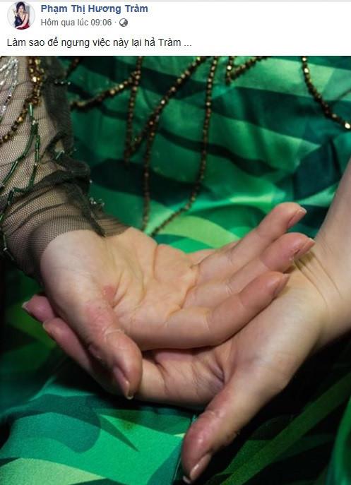 Tự bóc da tay đến mức rỉ máu, Hương Tràm có thể mắc bệnh gì?