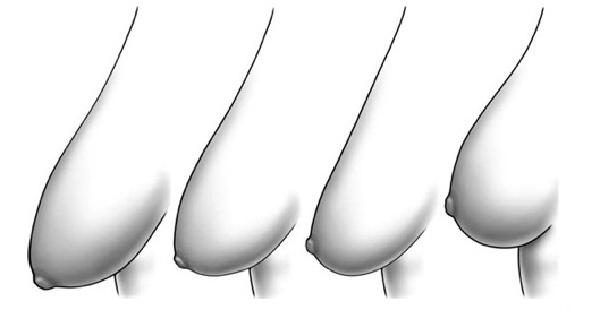 Ngực xệ,ngực dài