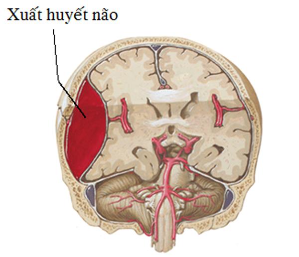 Kỹ sư 48 tuổi bất ngờ xuất huyết não do tham công việc