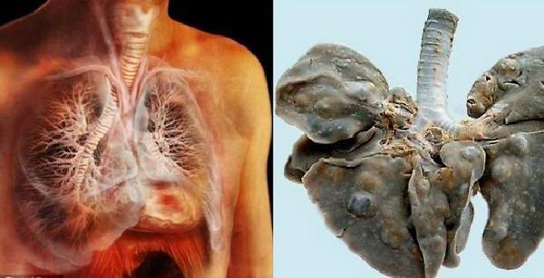 sán lá phổi,ký sinh trùng