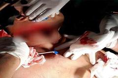 Nối ruột cứu sống người đàn ông bị đâm 10 nhát dao