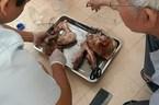 108 người ở Bình Phước nhiễm ấu trùng sán lợn gạo từ 1 ổ bệnh
