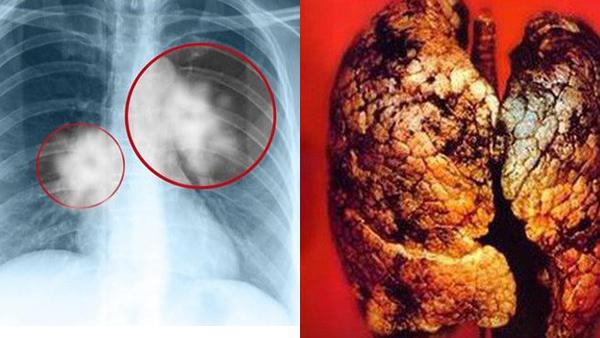 ung thư,ung thư phổi