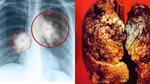 Trẻ nhất Việt Nam, nam sinh 17 tuổi chết vì ung thư phổi