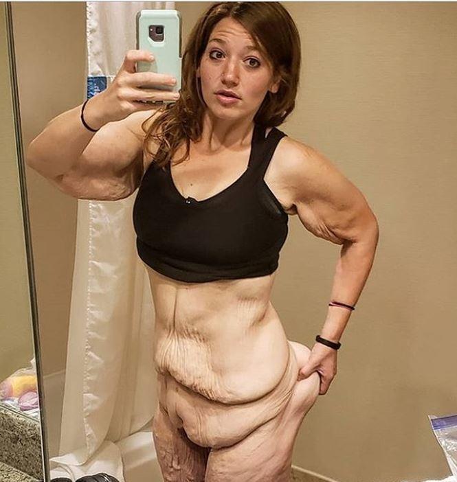 Cơ thể gây ám ảnh của cô gái giảm 141kg trong hơn 1 năm